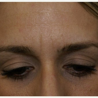 35-44 year old woman treated with Botox before 1743561