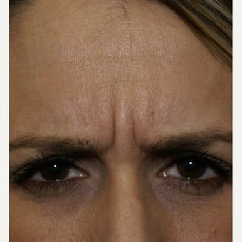 35-44 year old woman treated with Botox 1743561