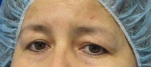 Eyelid Surgery before 3168596