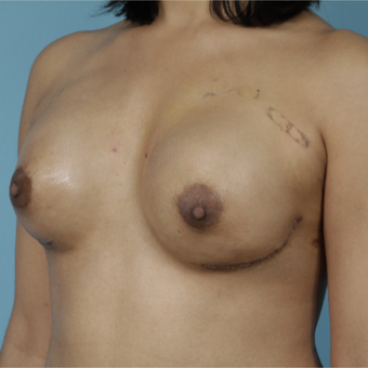 25-34 year old woman treated with Breast Reconstruction after 3730071