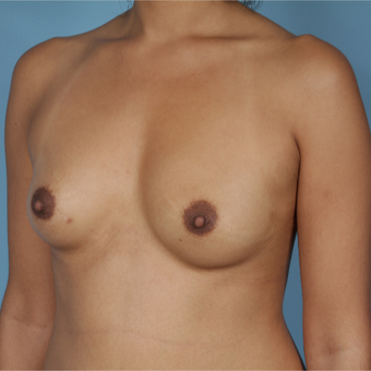 25-34 year old woman treated with Breast Reconstruction before 3730071