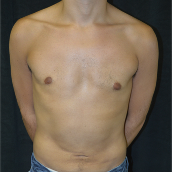 25-34 year old man treated with Liposuction after 3418665