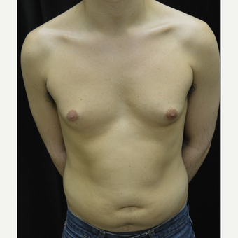 25-34 year old man treated with Liposuction before 3418665