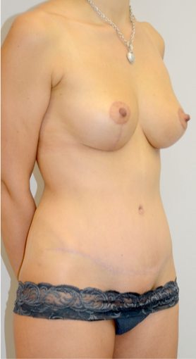 35-44 y.o. woman had Mommy Makeover - breast lift + tummytuck, extensive liposculpture