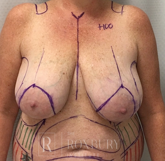 35-44 year old woman treated with Breast Lift before 3844293