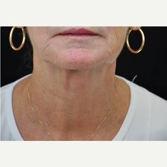 65-74 year old woman treated with Ultherapy after 2364068