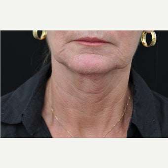 65-74 year old woman treated with Ultherapy before 2364068