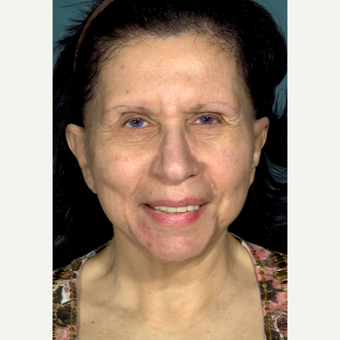 55-64 year old woman treated with Brow Lift before 3097502