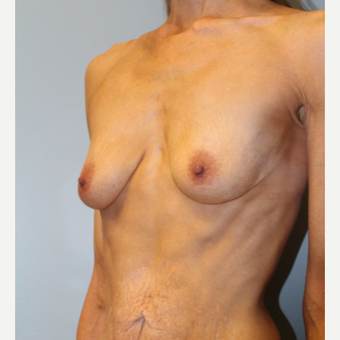 45-54 year old woman treated with Breast Implants before 3570863