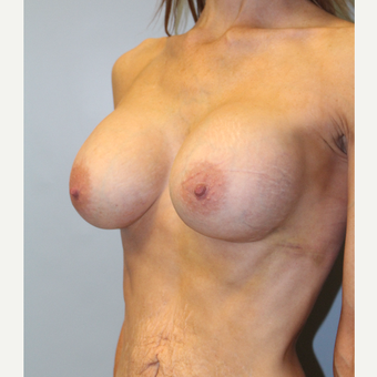 45-54 year old woman treated with Breast Implants after 3570863
