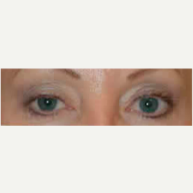Eyelid Surgery after 3058111