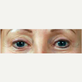 Eyelid Surgery before 3058111