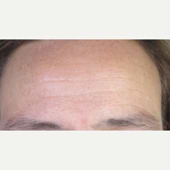 45-54 year old man treated with Skin Rejuvenation