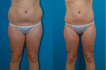 22-year-old woman treated with Liposuction. before 574526