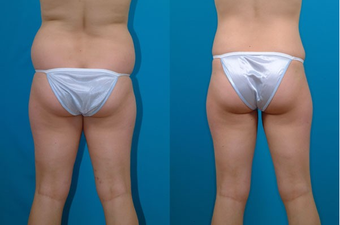 22-year-old woman treated with Liposuction. after 574526