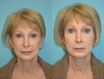 Female Voluma Treatment for mid-face lift before 1220990