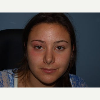 18-24 year old woman treated with Ptosis Surgery before 2180503