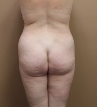35-44 year old woman treated with Brazilian Butt Lift 3338903