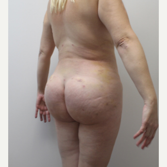35-44 year old woman treated with Brazilian Butt Lift after 3338903