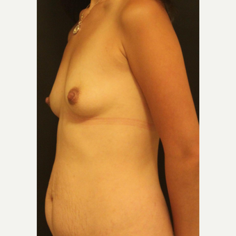 25-34 year old woman treated with Breast Implants before 3731981