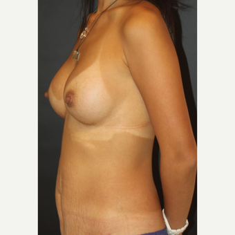 25-34 year old woman treated with Breast Implants after 3731981