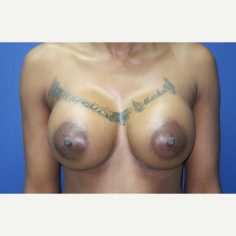 35-44 year old woman treated with Breast Augmentation after 3695324
