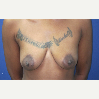 35-44 year old woman treated with Breast Augmentation before 3695324