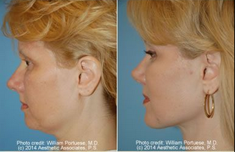 Neck Lift and Chin Implant before 91923