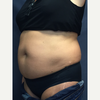 45-54 year old woman treated with SculpSure before 3725359