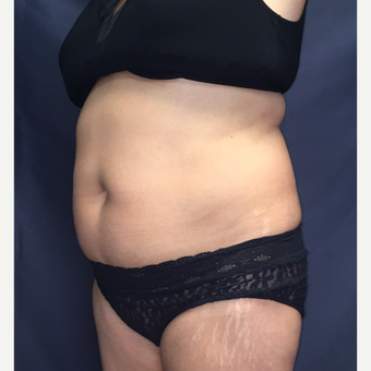 45-54 year old woman treated with SculpSure after 3725359