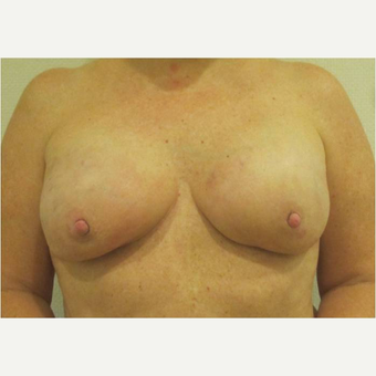 45-54 year old woman treated with Breast Reconstruction after 3744674
