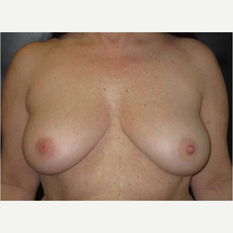 45-54 year old woman treated with Breast Reconstruction before 3744674