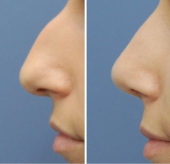 Rhinoplasty before 555766