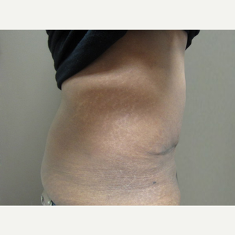 35-44 year old woman treated with Tummy Tuck after 3226517