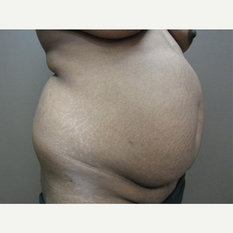 35-44 year old woman treated with Tummy Tuck before 3226517