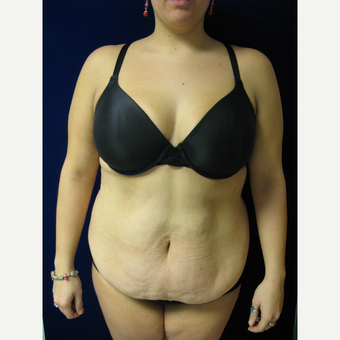 35-44 year old woman treated with Tummy Tuck before 3766096
