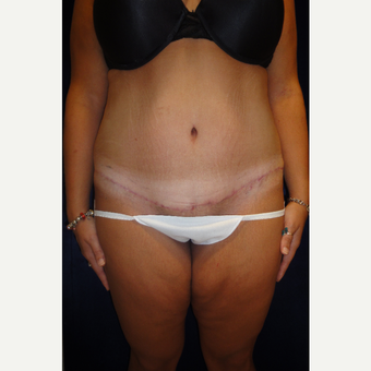 35-44 year old woman treated with Tummy Tuck after 3766096