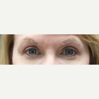 45-54 year old woman treated with Eyelid Surgery after 3241310