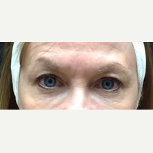 45-54 year old woman treated with Eyelid Surgery before 3241310
