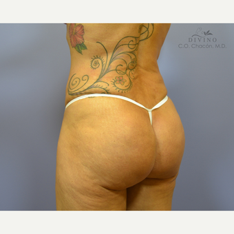 45-54 year old woman treated with Butt Augmentation after 3421235