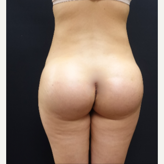 25-34 year old woman treated with Butt Lift using 712cc Round Silicone Butt Implants after 3259563
