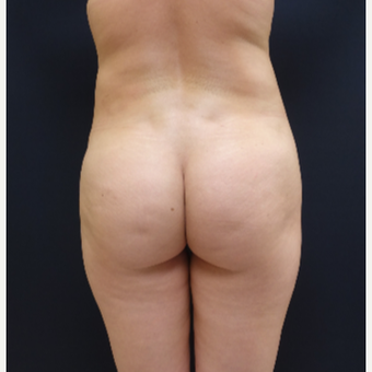 25-34 year old woman treated with Butt Lift using 712cc Round Silicone Butt Implants before 3259563