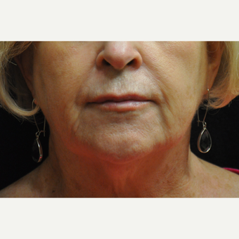 55-64 year old woman treated with Injectable Fillers after 3212414