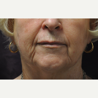 55-64 year old woman treated with Injectable Fillers before 3212414