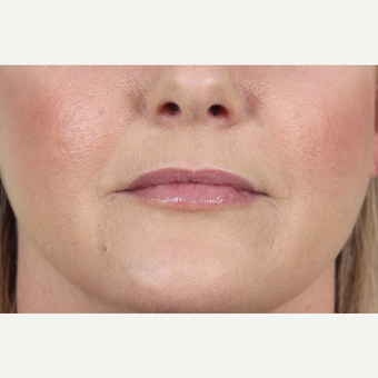 45-54 year old woman treated with Juvederm to her lips and marionette lines after 3345159