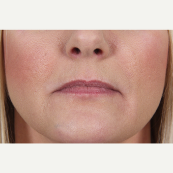 45-54 year old woman treated with Juvederm to her lips and marionette lines before 3345159