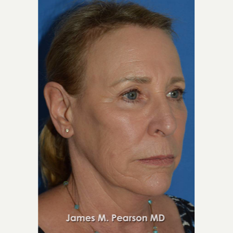 55-64 year old woman treated with Facelift before 3802260