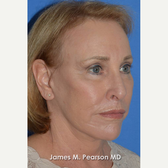 55-64 year old woman treated with Facelift after 3802260