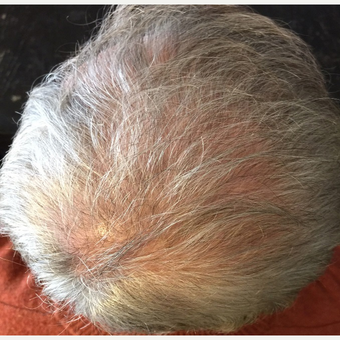 45-54 year old man treated with NeoGraft after 3696654