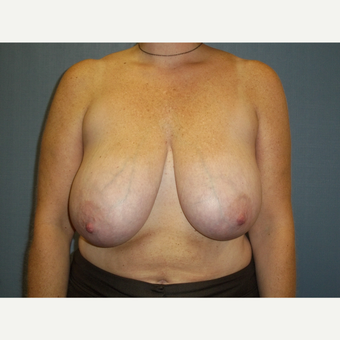 45-54 year old woman treated with Breast Reduction before 3538740